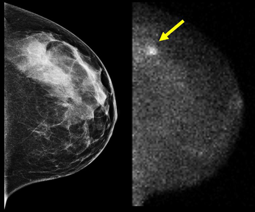 Advances in Molecular Breast Imaging Special Report, AuntMinnie.com: 45-year-old woman with dense breasts. Screening mammogram (L), MBI (R).