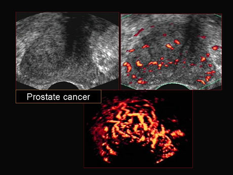 Pictures Of Prostate Cancer