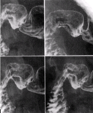 Patient positioning tips for a premium ugi series double contrast images of duodenal bulb in left lateral position in various obliques 10 x 12 image receptor 4 on 1 image courtesy of dr naveed ahmad ccuart Choice Image