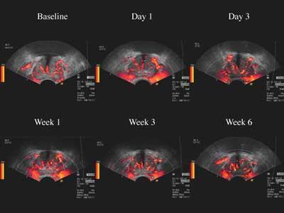 Doppler color importante en la evaluación de cáncer de próstata