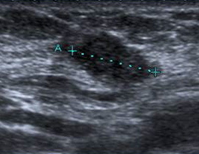 The Good The Bad And The Ugly About Breast Ultrasound