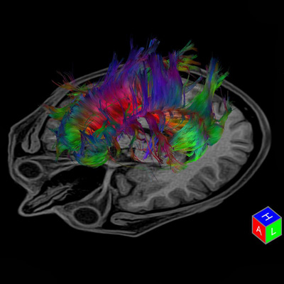 Tractography is a 3D modeling technique
