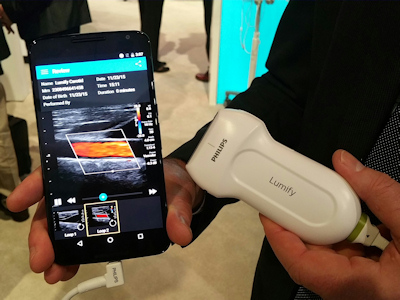 Lumify ultrasound transducer