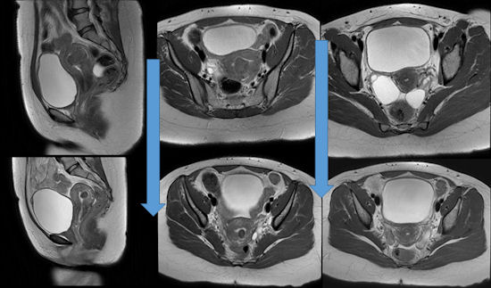 MR images before and after UFE of 32-year-old patient with a 5-cm submucosal fibroid