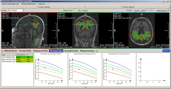 Fully automated segmentation and quantification of different brain regions based on a machine learning algorithm