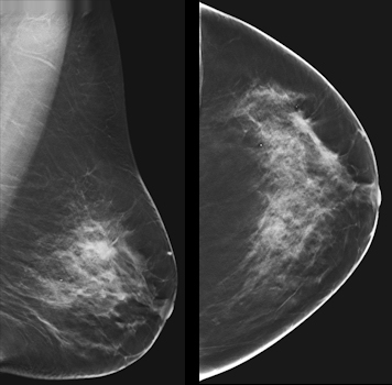 A 63-year-old woman with a subtle spiculated mass that is better demonstrated on tomosynthesis