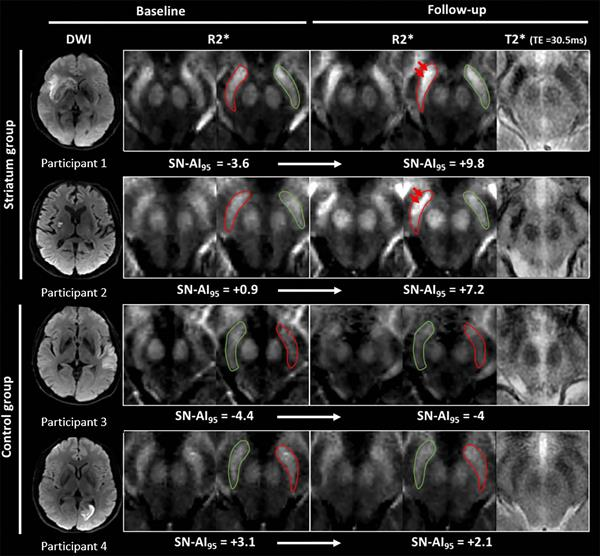 MR images show examples of visual R2* modifications within substantia nigra
