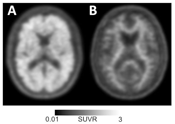 Amyloid-positive (left) and amyloid-negative (right) PET scans