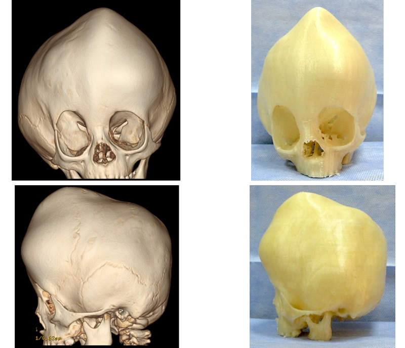 3D virtual skull model based on patient CT scans (left). 3D-printed craniofacial model (right).