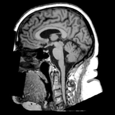 MRI shows obesity can influence brain volume