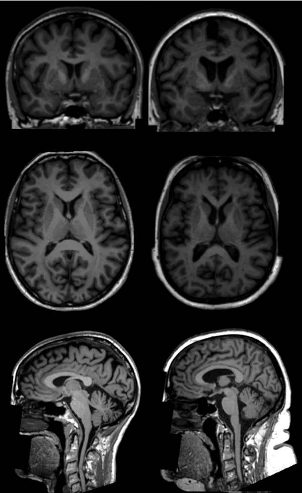 T1-weighted brain MR images