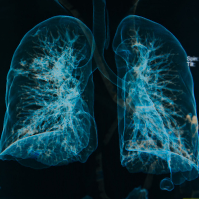 U.K. physicians overlook lung cancer in nonsmokers