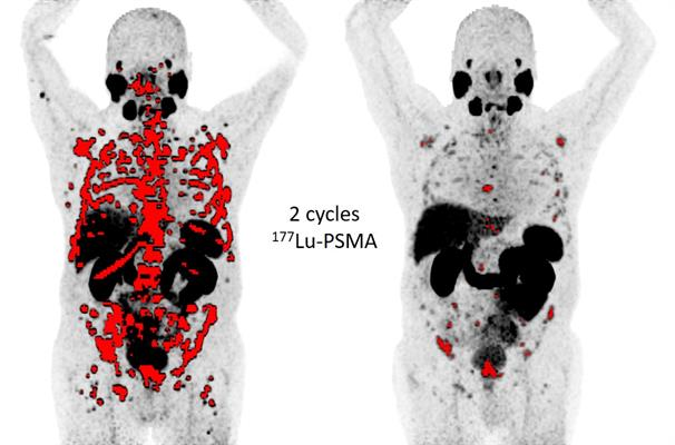 Lu-177 PMSA PET images illustrate the spread of cancer (red areas), or lack thereof, in two different patients with metastatic castration-resistant prostate cancer