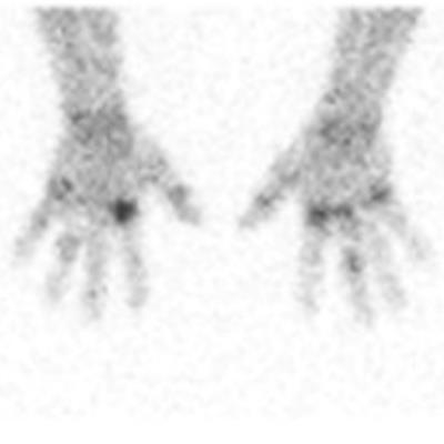 SNMMI: Technetium radiotracer tracks rheumatoid arthritis