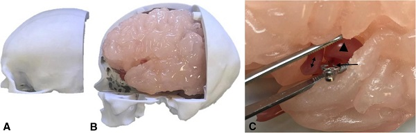 Patient-specific 3D-printed model for neurosurgery simulation