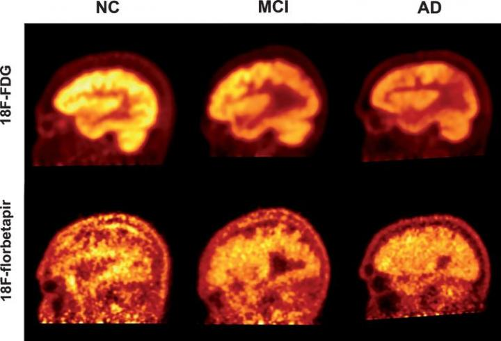 PET imaging using FDG and florbetapir to quantify cognitive decline in patients with Alzheimer