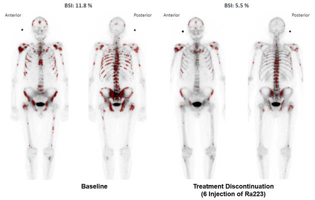 Declining aBSI values after six treatments with Ra-223; the artificial neural network preselected skeletal regions (dark red), which were used to calculate the aBSI