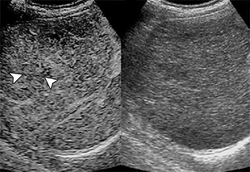 Image comparing a contrast-enhanced ultrasound and a conventional ultrasound