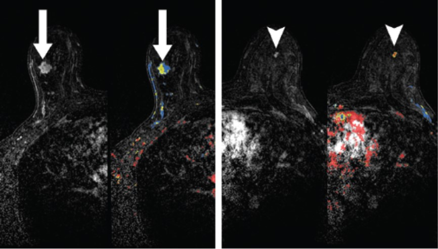 A breast MRI that showed a biopsy-proven benign mass. The mass was not seen in MBI or CEDM.