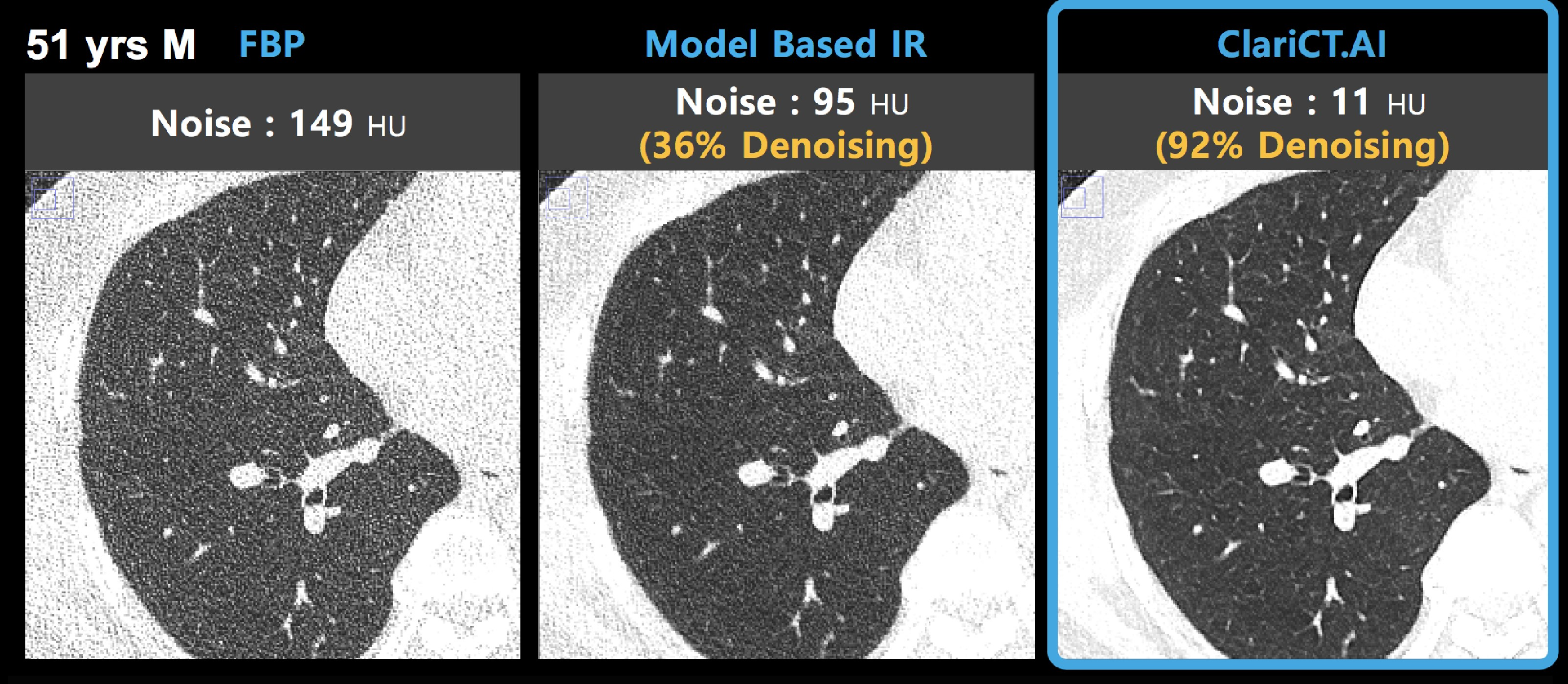 Image demonstrates ClariCT.AI algorithm applied to CT scan