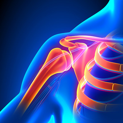 Gadolinium MRI improves diagnosis of shoulder condition