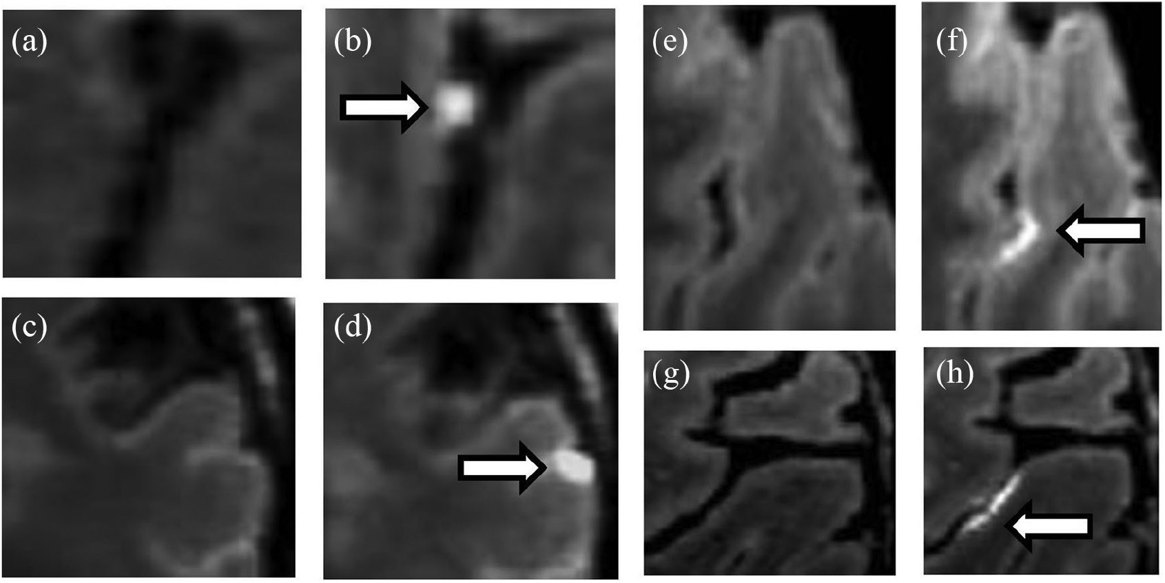 Images show 7-tesla MRI of MS subjects