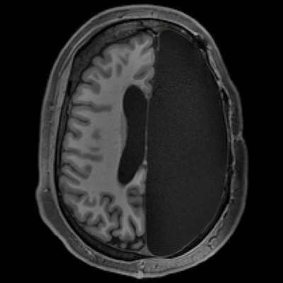 fMRI shows how brains rebound from hemispherectomy