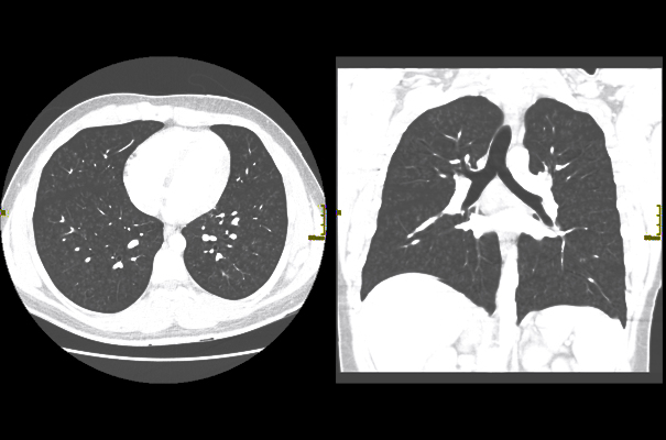 CT scans of a 17-year-old male with EVALI that show tree-in-bud opacities in both lungs