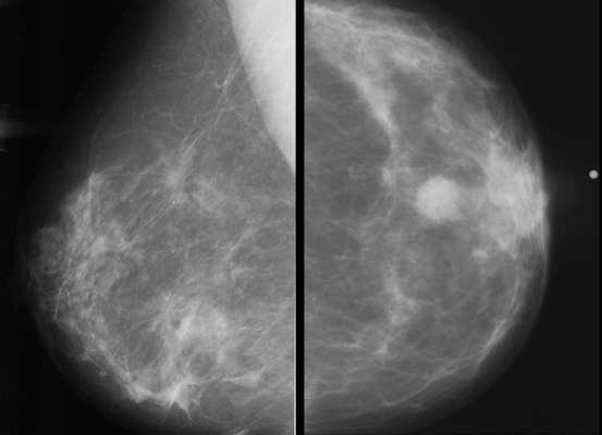 Images of normal and abnormal mammograms