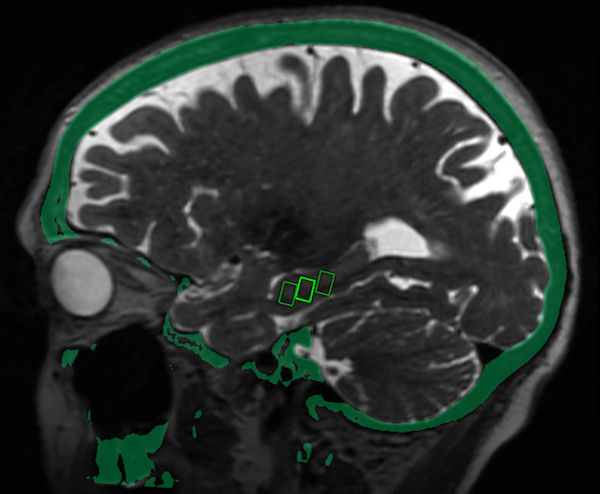 Fused MRI and CT image shows the three targeted sites in the brain