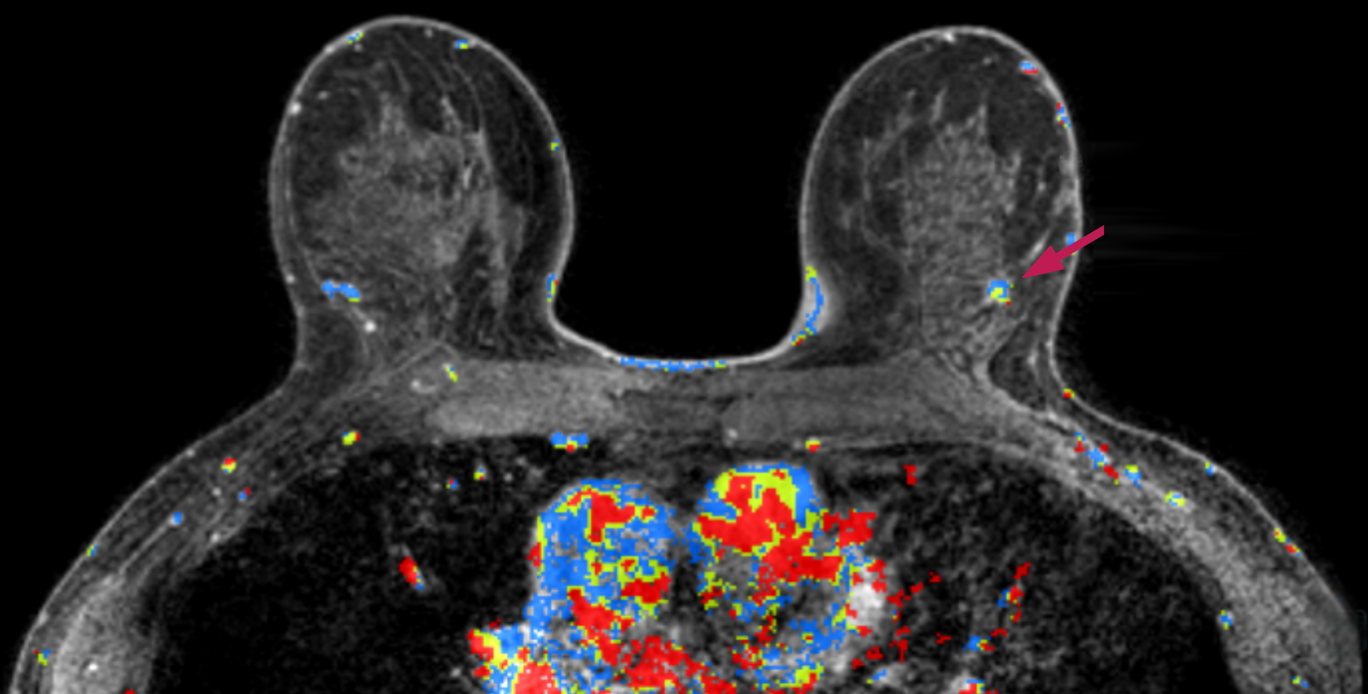 An MRI screening with a possible breast abnormality in the left breast