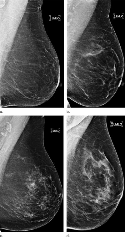 Examples of mammograms with concordance between the deep-learning risk score and the outcome of breast cancer