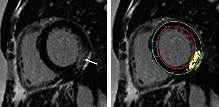 MR images of a woman with Fabry dusease who experienced unsustained ventricular tachycardia following cardiac MRI.