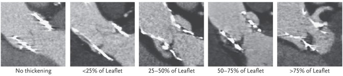 4D CT scans showing varying degrees of hypoattenuated leaflet thickening