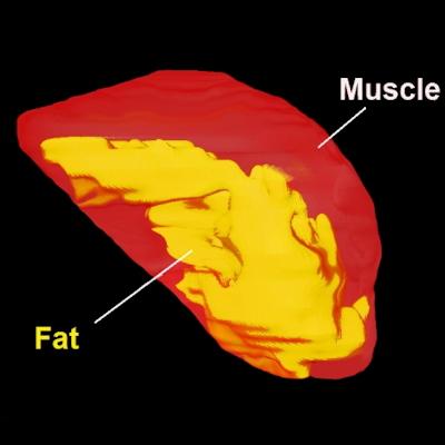 MRI shows slimmer tongue reduces sleep apnea