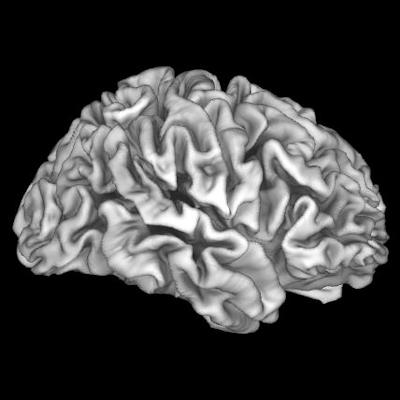 MRI links lead exposure, family income to brain development