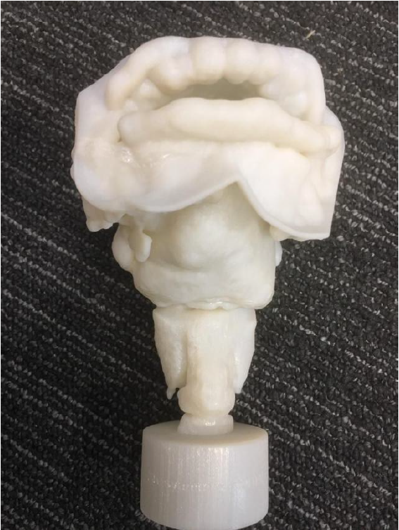 3D-printed vocal tract based on CT scans of Nesyamun