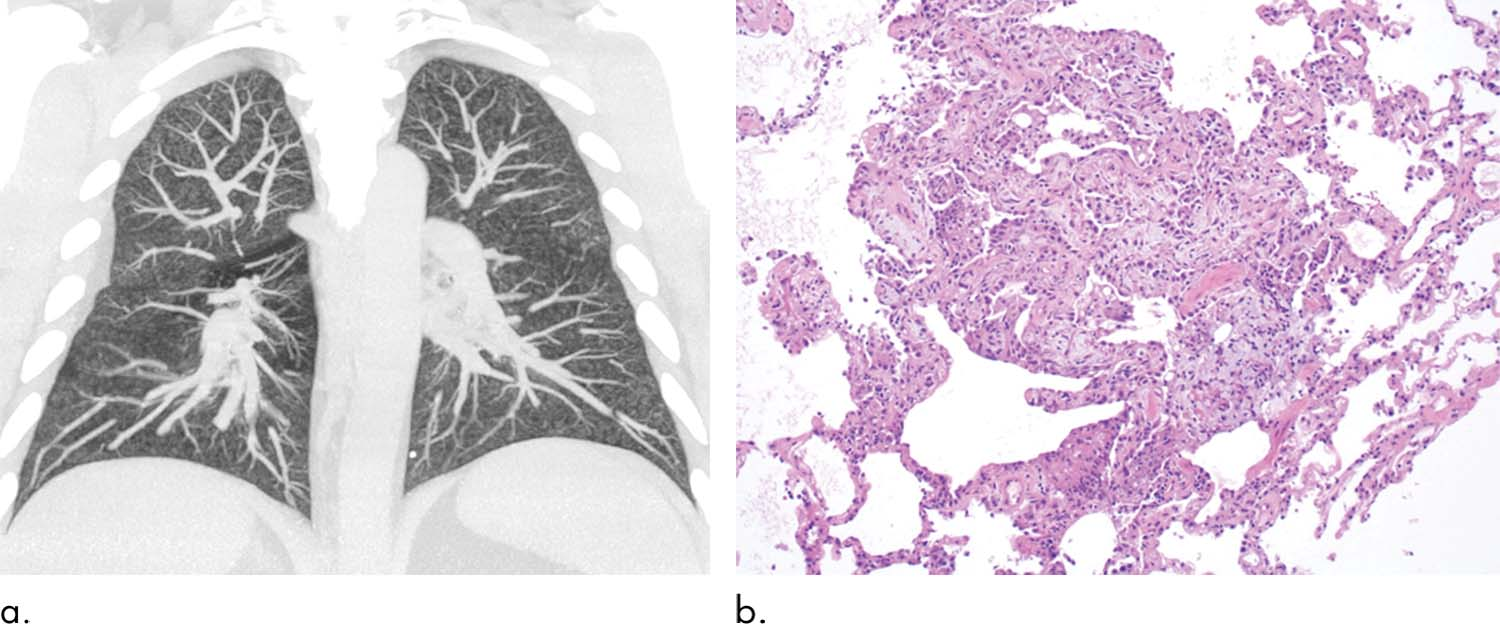 Maximum intensity projections of the CT data of a 32-year-old man with a history of vaping show diffuse centrilobular nodularity. Histologic sections of the transbronchial cryobiopsy of the patient show a micronodular pattern of airway-centered organizing pnemonia