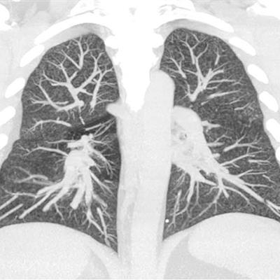 Experts reemphasize value of imaging in EVALI diagnosis
