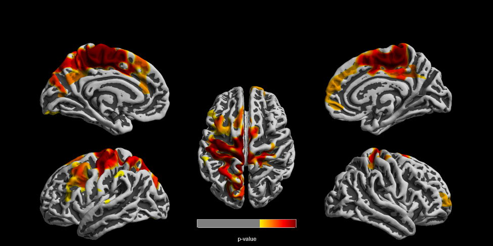 MR images show clusters of reduced cortical thickness among children highly exposed to air pollution, compared with lower-exposed children. The differences were seen in both left and right brain hemispheres.