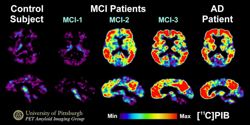PET images of three different patients with mild cognitive impairment and a patient with Alzheimer