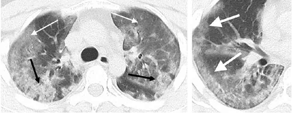 CT scans of a 29-year-old male with the novel coronavirus showing diffuse bilateral confluent and patchy ground-glass opacities and consolidative opacities. A zoomed-in look of the right middle and lower lobes shows striking peripheral distribution