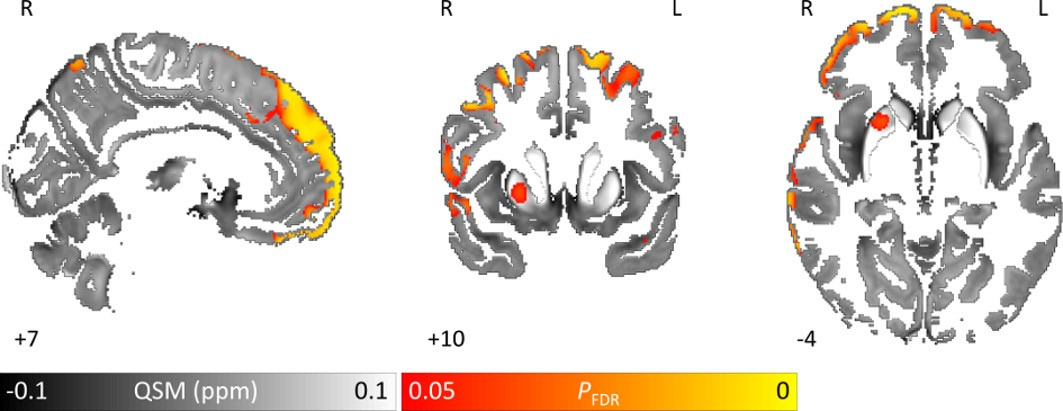 Images show area of significantly higher iron concentration in the brains of Parkinson