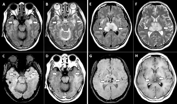 MRI images demonstrate T2 FLAIR hyperintensity within the bilateral medial temporal lobes and thalami with evidence of hemorrhage indicated by hypointense signal intensity on susceptibility-weighted images and rim enhancement on postcontrast images