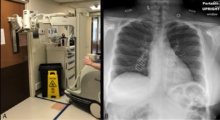 Chest radiography performed through glass. Technologists position the portable x-ray unit outside the patient room, with the tube peering through the wire-reinforced isolation room window. The anteroposterior chest x-ray obtained is of diagnostic quality