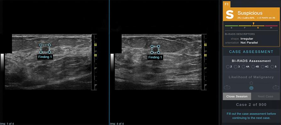 AI output scores were presented to study readers in graphical form as an electronic case report in conjunction with orthogonal ultrasound images of the lesion for that case