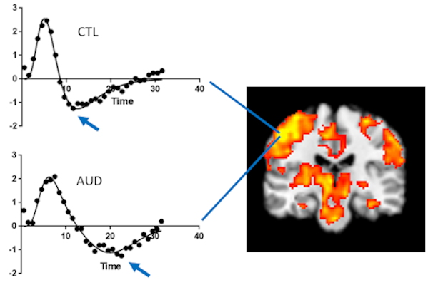 Functional MR image shows activation, especially in left sensorimotor cortex, in response to the finger-tap task
