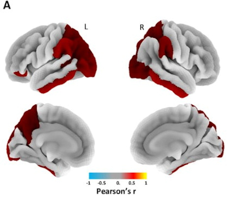 Three-dimensional overlay shows the regional pattern of statistically significant correlation between QSM and tau-PET values, including the inferior temporal gyrus