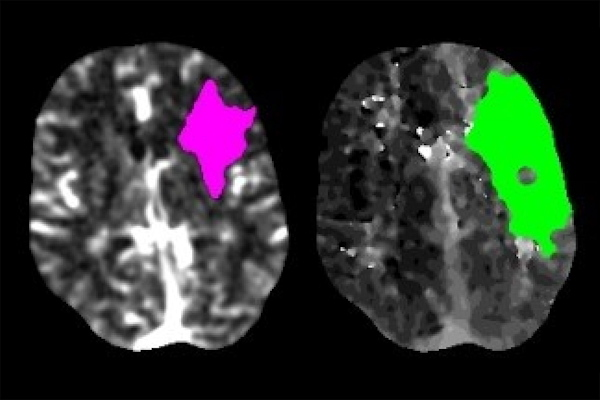 Scans of a stroke patient