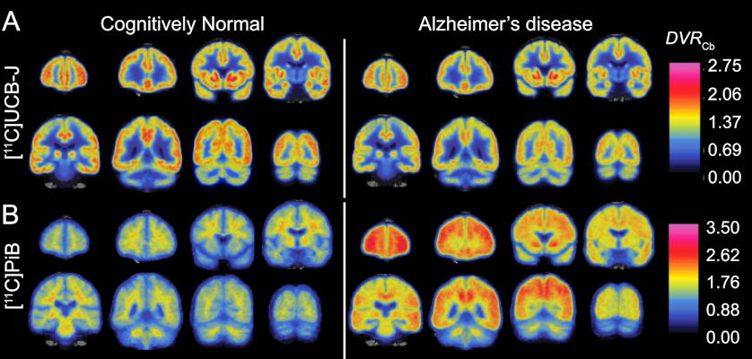 Images comparing the synaptic density of patients with Alzheimer